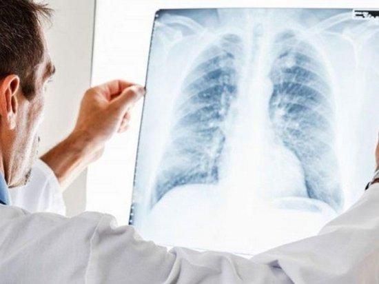 Украина — в лидерах Европы по туберкулезу