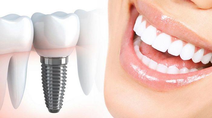 Основные преимущества имплантации зубов