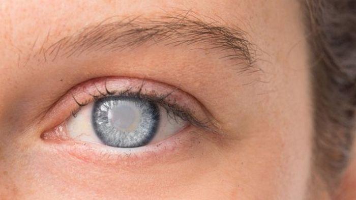 Что необходимо знать о глаукоме?