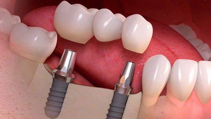Восстановление разрушенных зубов с помощью стоматологических штифтов – основные применяемые виды