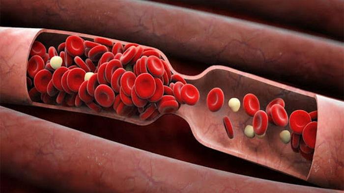 6 природных средств для разжижения крови