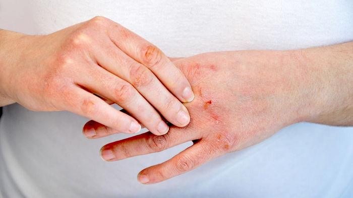 Дерматит зафиксировали почти у 70% людей из-за частого соблюдения гигиены