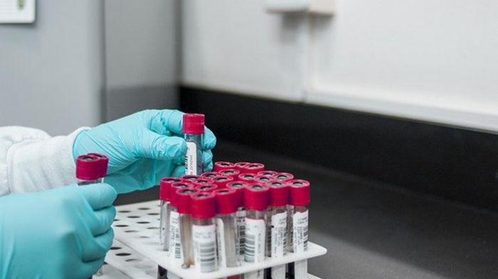 Обнаружен белок в крови, связанный с быстрым старением