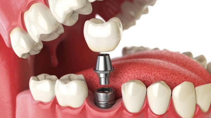 Как происходит установка зубных имплантов?
