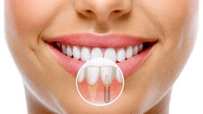 Что необходимо знать об имплантации зубов?
